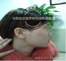 """头发遮盖不是根本之策,科学治疗走出""""斑驳""""人生"""